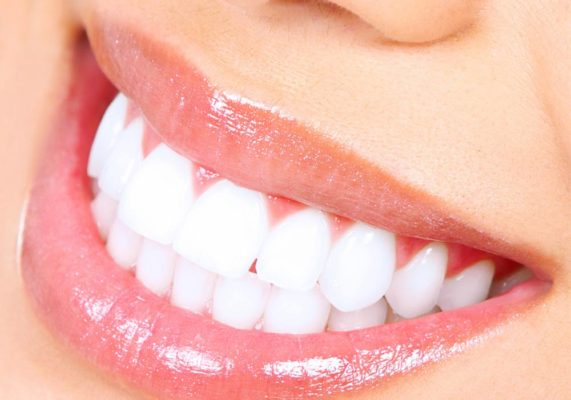 Best Tooth Whitening1 Treatment in Highton Geelong
