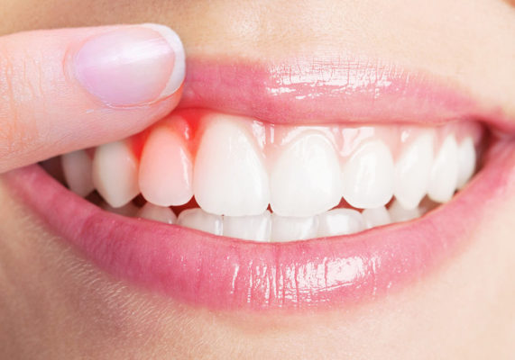 Best-dental-gum-treatment-in-Highton-Geelong