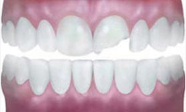 Dental denture service Highton Geelong A chipped front tooth