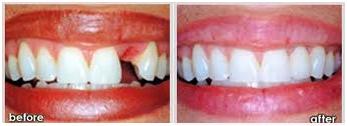 Dental denture service Highton Geelong Bridge before&after
