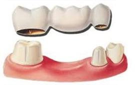 Dental denture service Highton Geelong Bridge