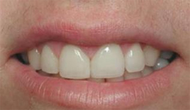 Dental denture service Highton Geelong VENEERS & BONDING after6