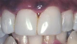 Dental denture service Highton Geelong VENEERS & BONDING after7