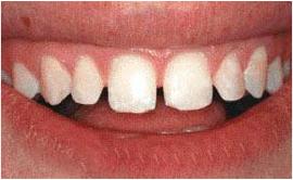 Dental denture service Highton Geelong VENEERS & BONDING before1