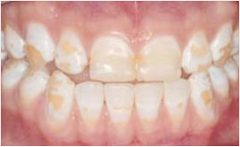 Dental denture service Highton Geelong VENEERS & BONDING before2