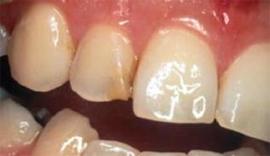 Dental denture service Highton Geelong VENEERS & BONDING before5