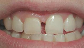 Dental denture service Highton Geelong VENEERS & BONDING before6