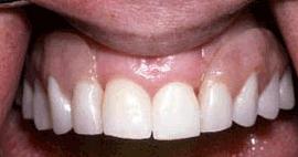 Dental denture service Highton Geelong after 1