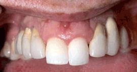 Dental denture service Highton Geelong before 1