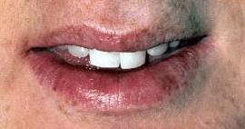 Dental denture service Highton Geelong before 2