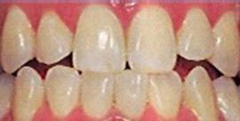 Dental denture service Highton Geelong tooth whitening before1