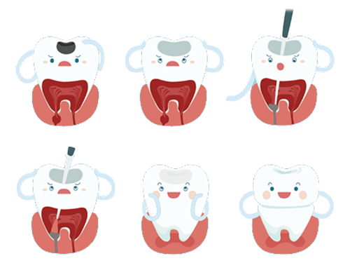 Root Canal Treatment in Highton Geelong 3