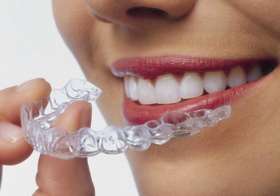 Best Dental Invisalign Treatment in Highton Geelong