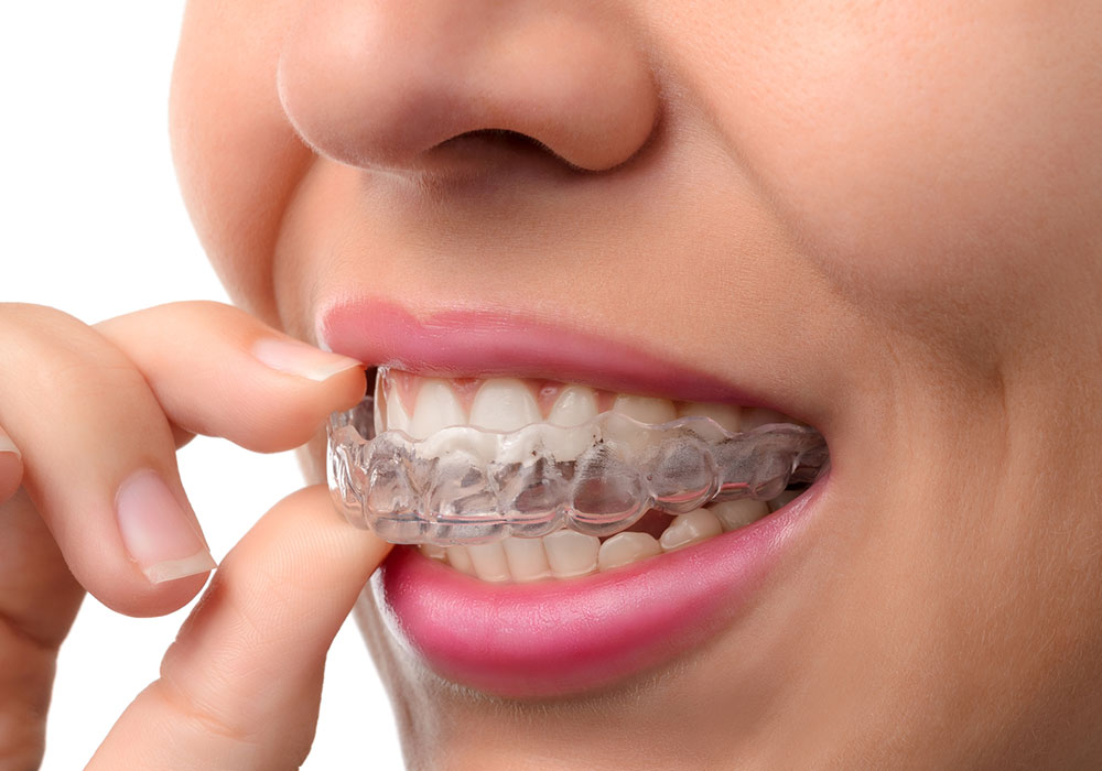 invisalign treatment in Highton Geelong